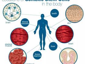 幹細胞抗癌讓絕症不再「絕」!