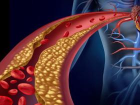 該怎樣對泛心血管疾病做保險規劃?