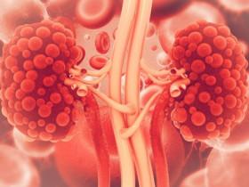 尿毒症?尿毒症的症狀與併發症及治療方式
