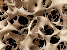 骨質疏鬆症