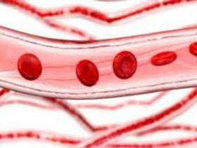 缺鐵性貧血的病因與症狀及治療