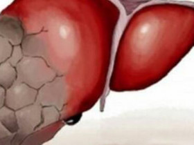 發生肝硬化的原因是什麼?