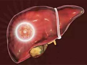 肝臟求救的六大信號!請立即救肝!