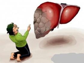 肝硬化通常有哪些症狀表現?